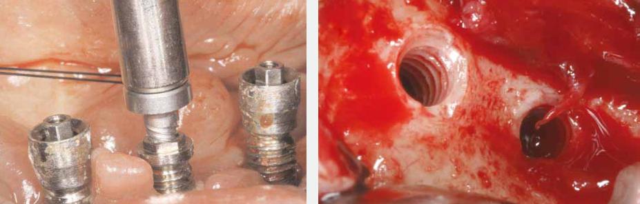 Implantaat extractie systeem